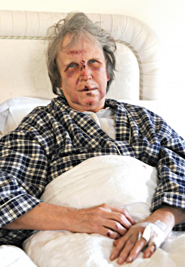 Gazette Series: Woman, 74, left battered and bruised after cyclist collision